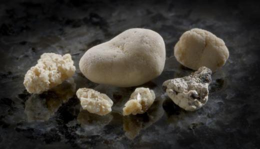 Аналіз каменю з нирки