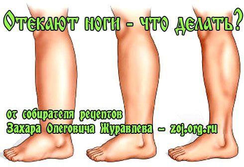 Застій крові і лімфи в ногах - лікування