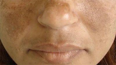 Що робити при появі змін пігментації шкіри