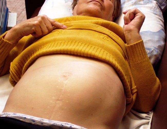 Що робити при збільшенні селезінки: симптоми і лікування патології