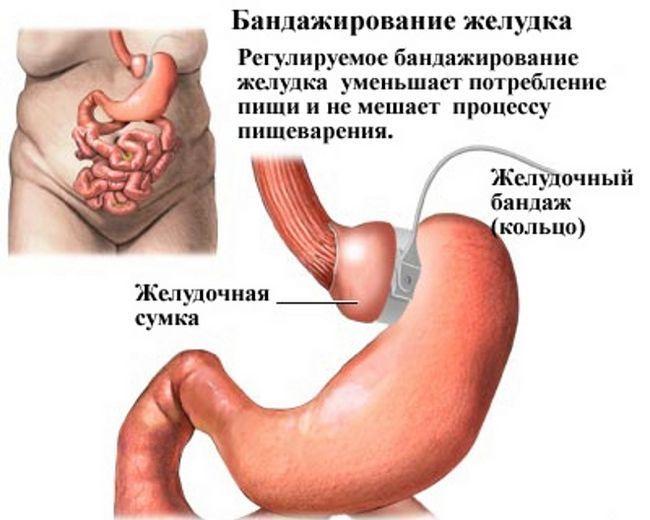 Що таке шунтування шлунка і як його проводять