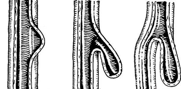 Дивертикул стравоходу: симптоми і лікування хвороби