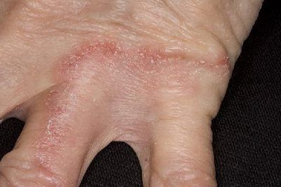 Грибок між пальцями: лікування