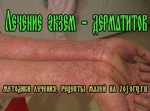 Екземи на руках і ногах - методики лікування дерматиту