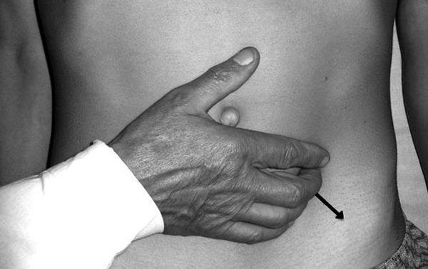 Як відбувається пальпація селезінки