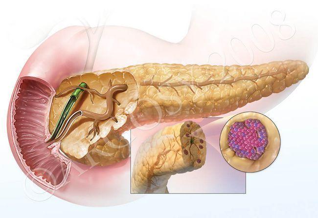 Як відновити підшлункову залозу після хвороби