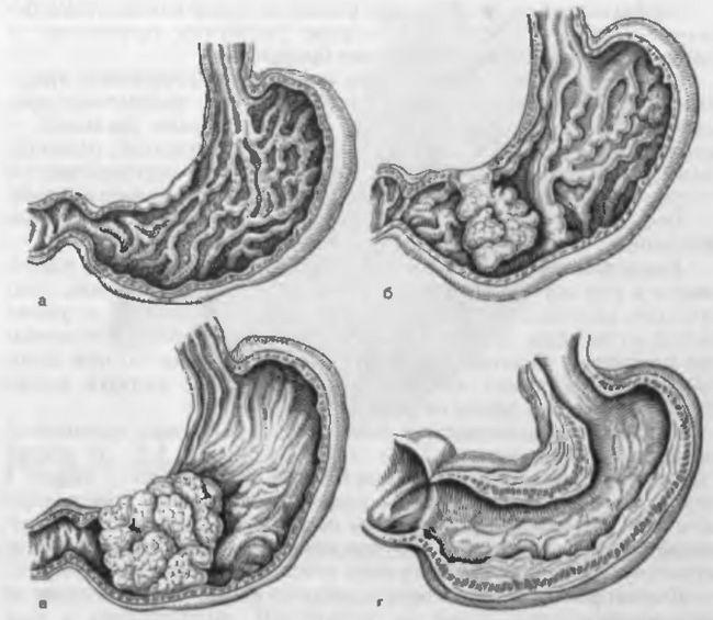 Які можливі ускладнення виразкової хвороби шлунка