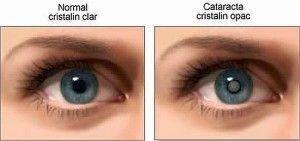 катаракта лікування народними засобами