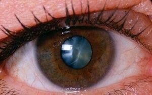 катаракта причини і симптоми
