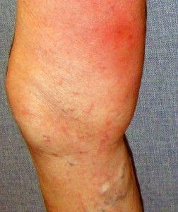 Лікування варикозу п`явками: підводні камені не безпечною гірудотерапії