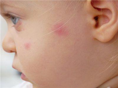 Лишай у дитини: лікування, причини та різновиди