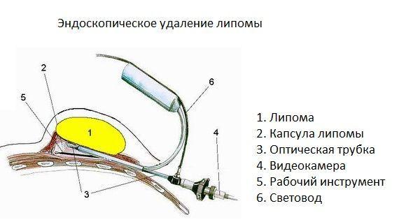 ендоскопічне видалення ліпоми