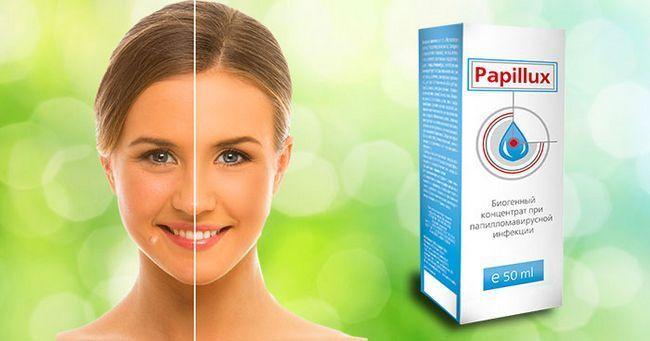 Папілюкс від бородавок і папілом ефективний препарат для зовнішнього і внутрішнього застосування