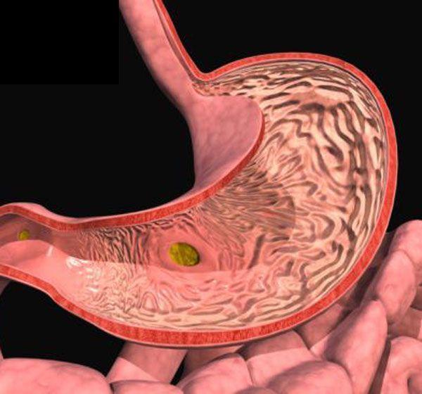 Атрофічний гастрит - дірки в шлунку