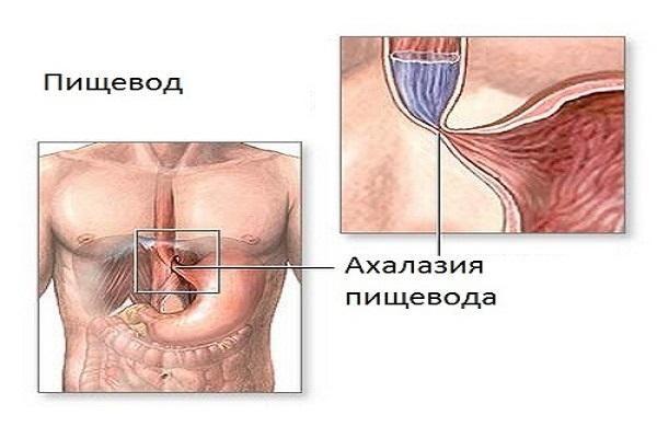 Причини, симптоми і лікування ахалазії стравоходу
