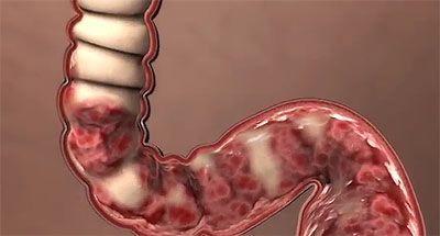 Ознаки хронічного коліту кишки - що робити для лікування захворювання