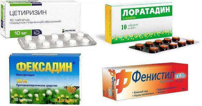 Найефективніші антигістамінні препарати: огляд найдієвіших засобів проти алергії