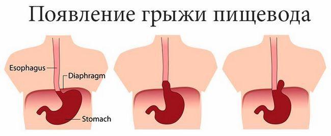 Симптоми і лікування ковзної грижі стравохідного отвору діафрагми