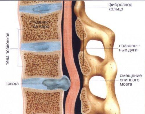 Симптоми, причини і лікування міжхребцевої грижі попереково-крижового відділу