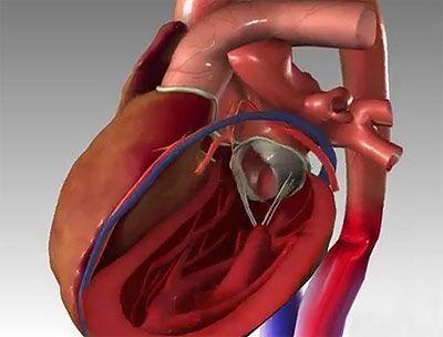 Симптоми серцевого нападу: що робити, якщо болить серце