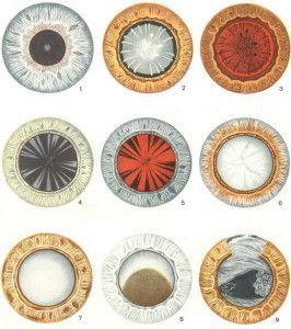 стадії катаракти