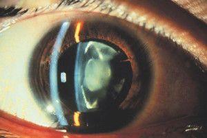 променева катаракта