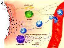 Запальний процес в організмі - причини, симптоми і перебіг